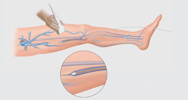 tratament cu laser pentru varice