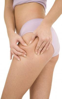 Cellulite Patch pareri